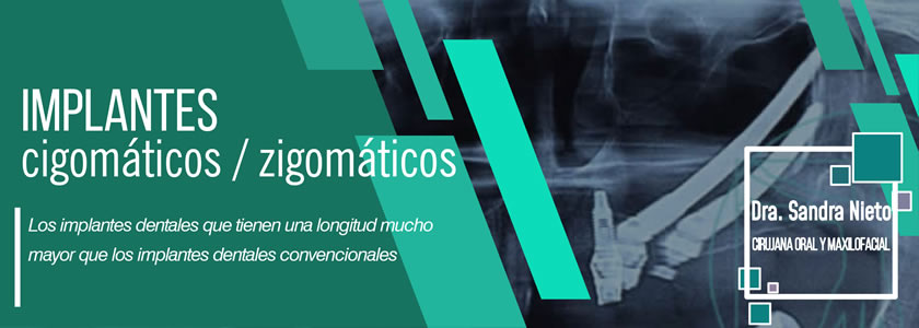 Banner Implante Dental Cigomatico