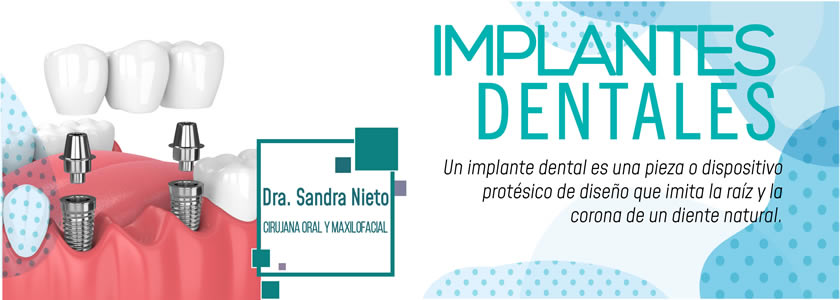 Banner Implante dental