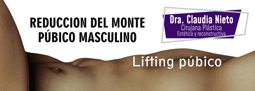 lifting pubico masculino