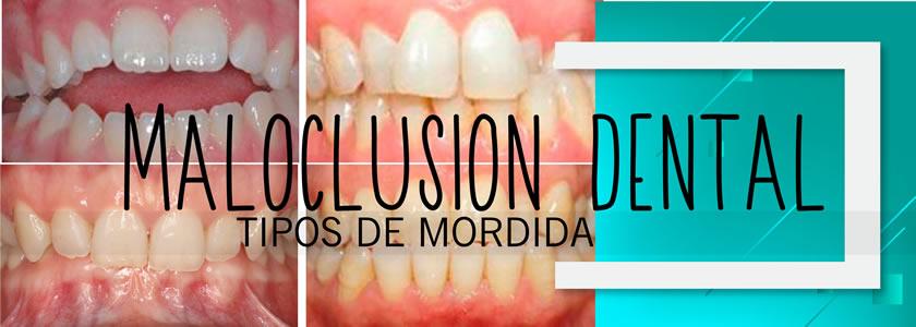 ortodoncia maloclusion
