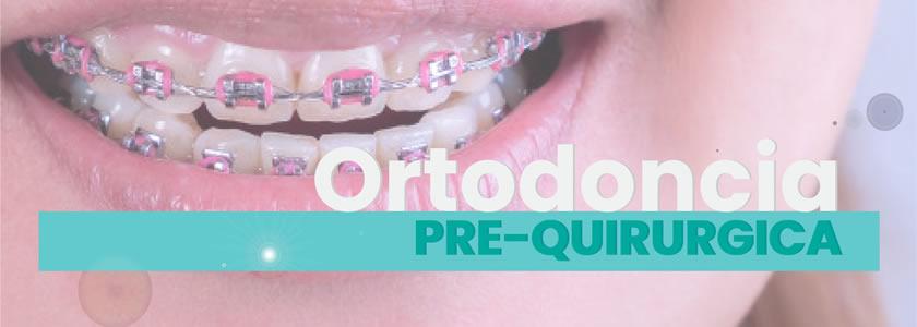 Ortodoncia Prequirúrgica
