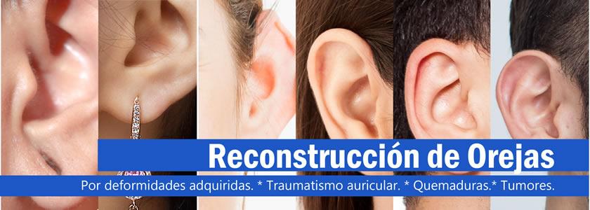 Banner Reconstrucción Orejas