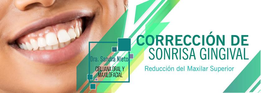 Banner Reducción Maxilar Superior