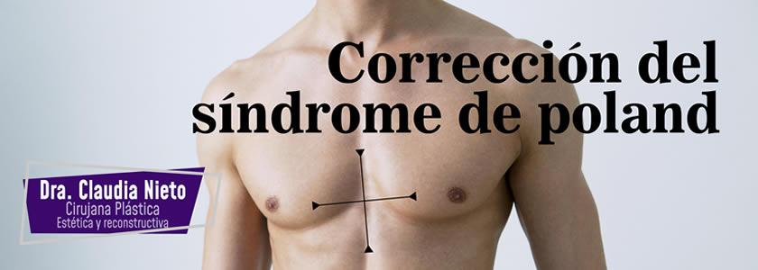 corrección sindrome poland