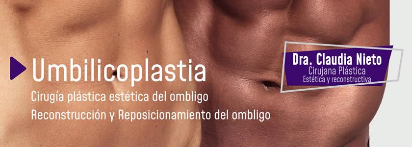 Banner Umbilicoplastia