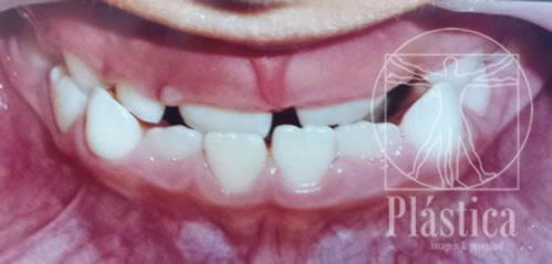 foto dientes desordenados con mala oclusion