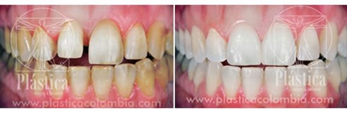foto antes y despues en reestructuración dental