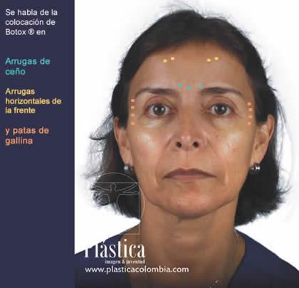 Tratamientos Faciales Arrugas