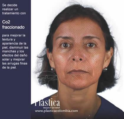 Tratamientos y caso de Arrugas