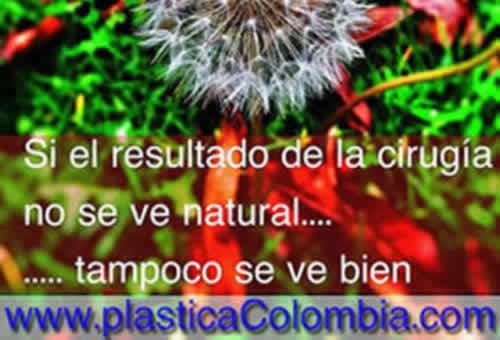 Resultados Naturales Plástica