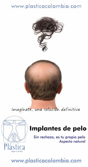 Implantes Pelo
