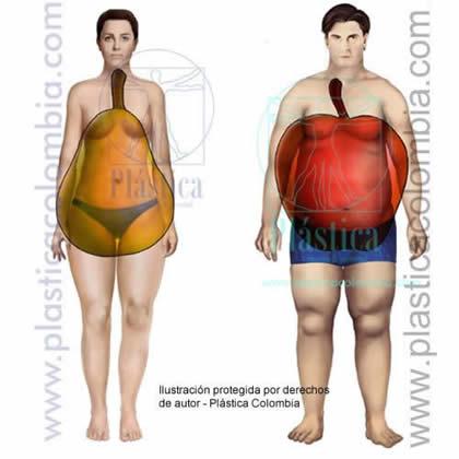 Ilustración de tipo de obesidad o gordura