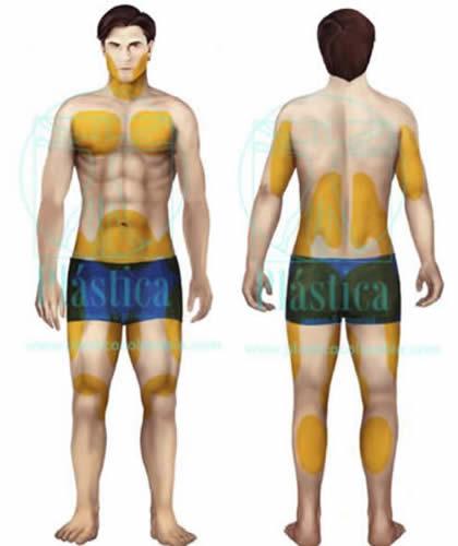 Ilustración,Zonas habituales liposucción