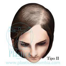 Alopecia B Tipo II