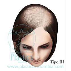 Alopecia C Tipo III