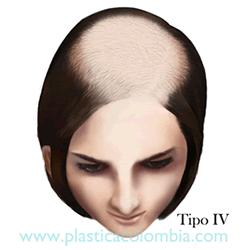 Alopecia D Tipo IV