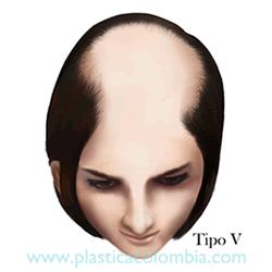 Alopecia E Tipo V