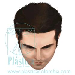 Ilustración Escala-hamilton A Normal