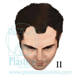 Alopecia Escala-hamilton C II