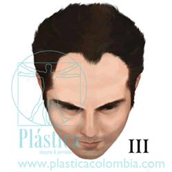 Alopecia Escala-hamilton D III