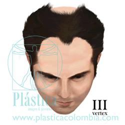Alopecia Escala-hamilton E III vertex