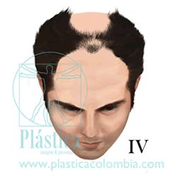 Alopecia Escala-hamilton F IV