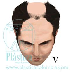 Alopecia Escala-hamilton G V