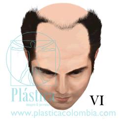 Alopecia Escala-hamilton H VI
