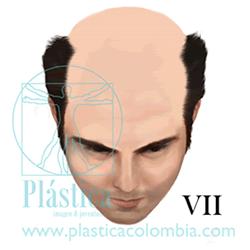Alopecia Escala-hamilton I VII
