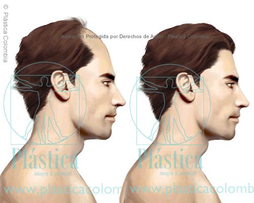 Ilustración sobre Alopecia Antes y Después - Masculina