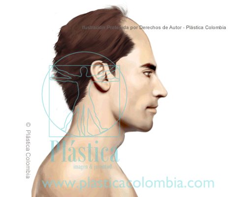 Ilustración sobre Alopecia Masculina