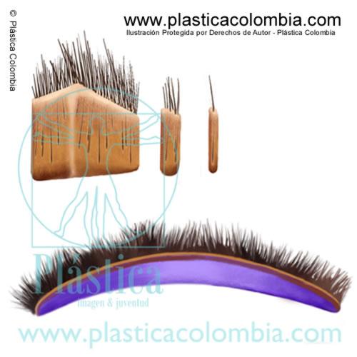 Ilustración de Injertos de pelo