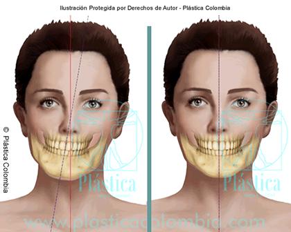 Ilustración de asimetría facial Maxilar