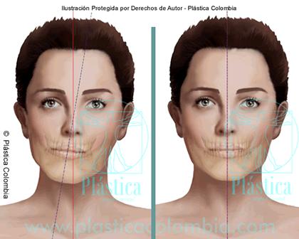 Ilustración de asimetría facial