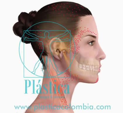 Disco Articular Normal temporomandibular (ATM)