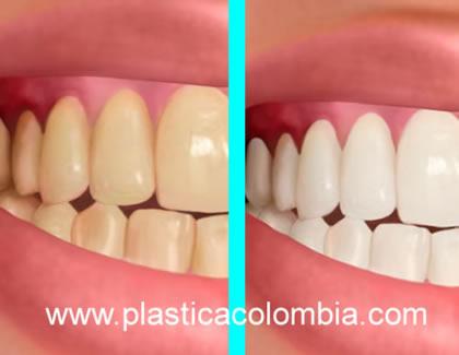 Ilustración antes y después Blanqueamiento Dental