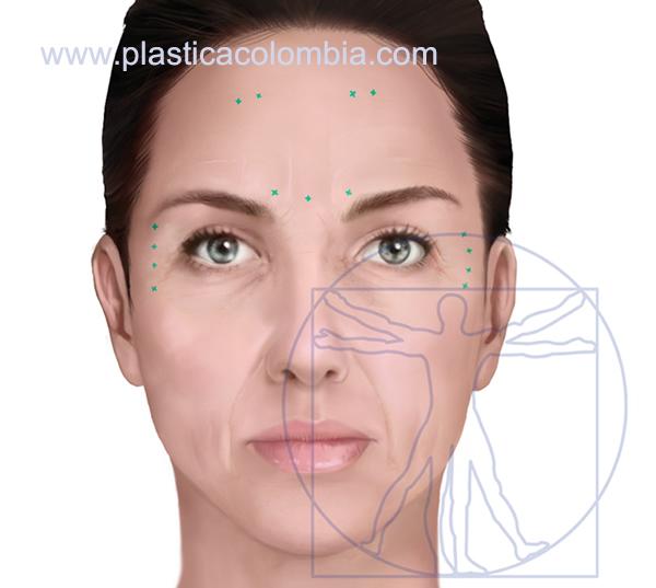 Ilustración mostrando las áreas de aplicación rellenos faciales