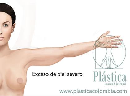 Braquioplastia de liposucción o tipo BAJO