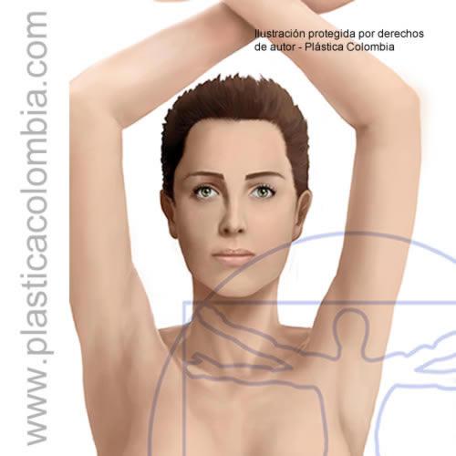Ilustración de brazos e eliminar el gordito del brasier