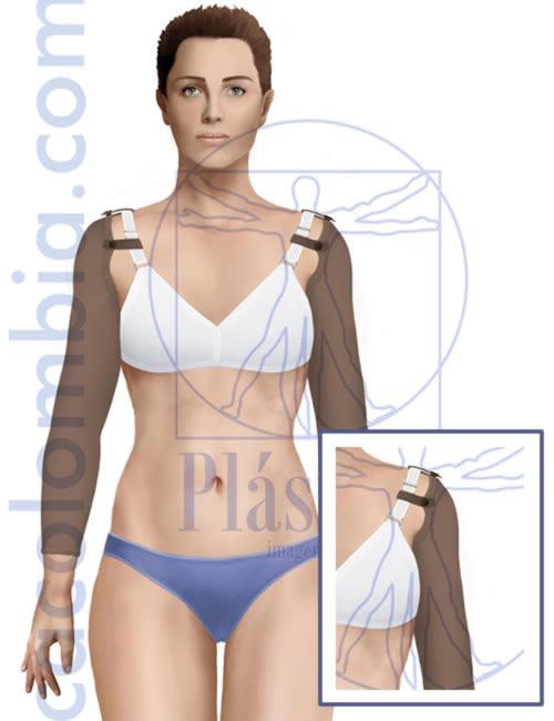 Ilustración de faja en los brazos después de una braquioplastia