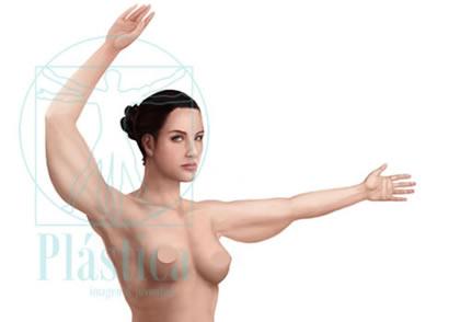 Braquioplastia de exceso de grasa y piel o tipo ALTO