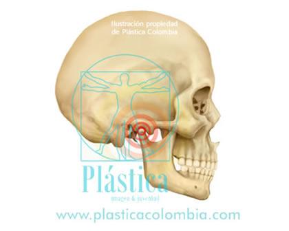 dolor maxilofacial