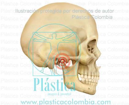 Ilustración dolor en le maxilar