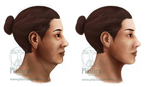 Rejuvenecimiento de cuello, párpados y Cara