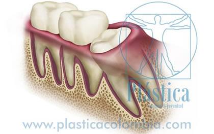 ilustracion dolor cordal