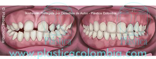 Ilustración Frenillectomia labial Superior