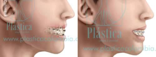 Ilustración Proceso de ortodoncia con brakets
