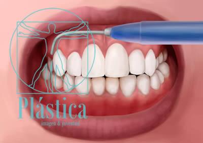 ilustración Procedimiento Gingivoplastia 2