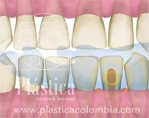 Sensibilidad Dental - Plastica Colombia