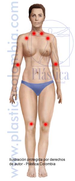 Ilustración Fibromialgia Frontal Femenina